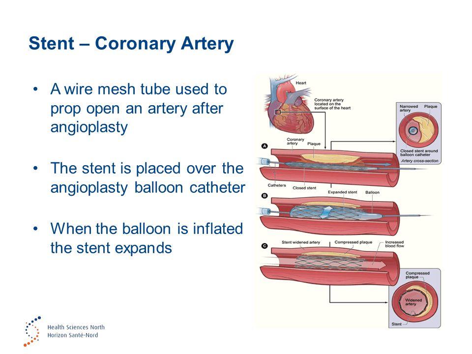 Stent – Coronary Artery