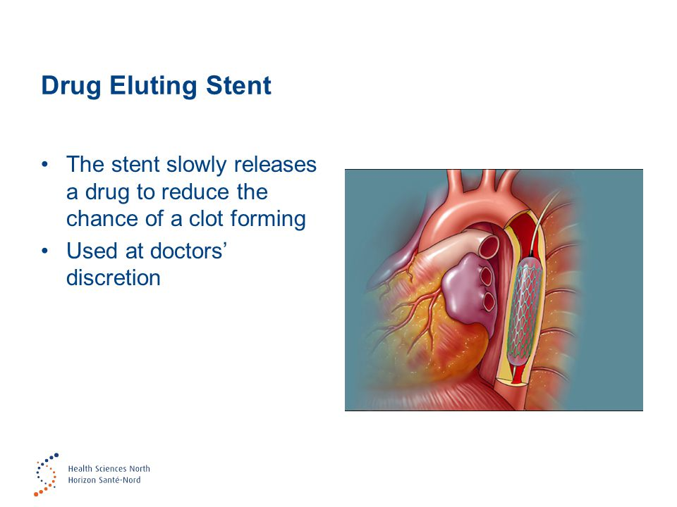Drug Eluting Stent The stent slowly releases a drug to reduce the chance of a clot forming.