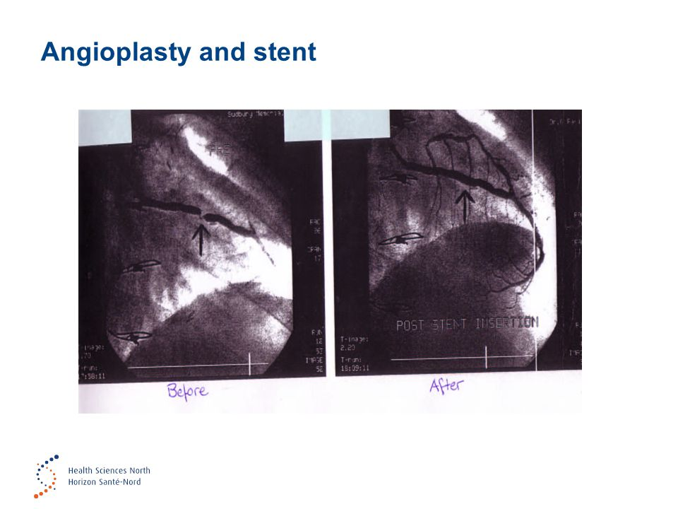 Angioplasty and stent