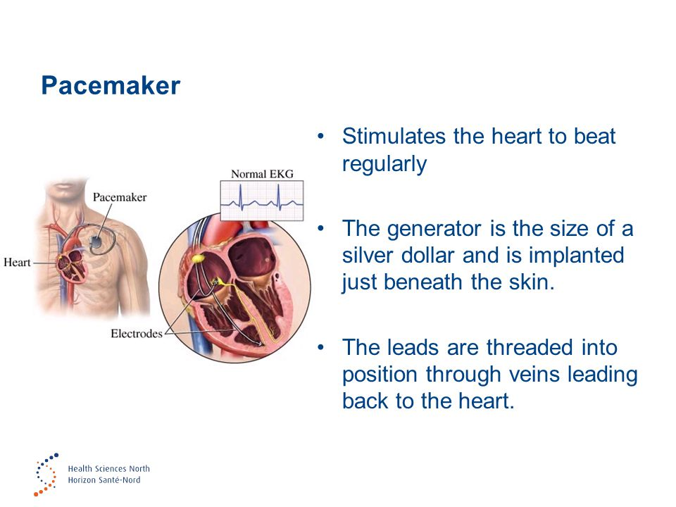 Pacemaker Stimulates the heart to beat regularly