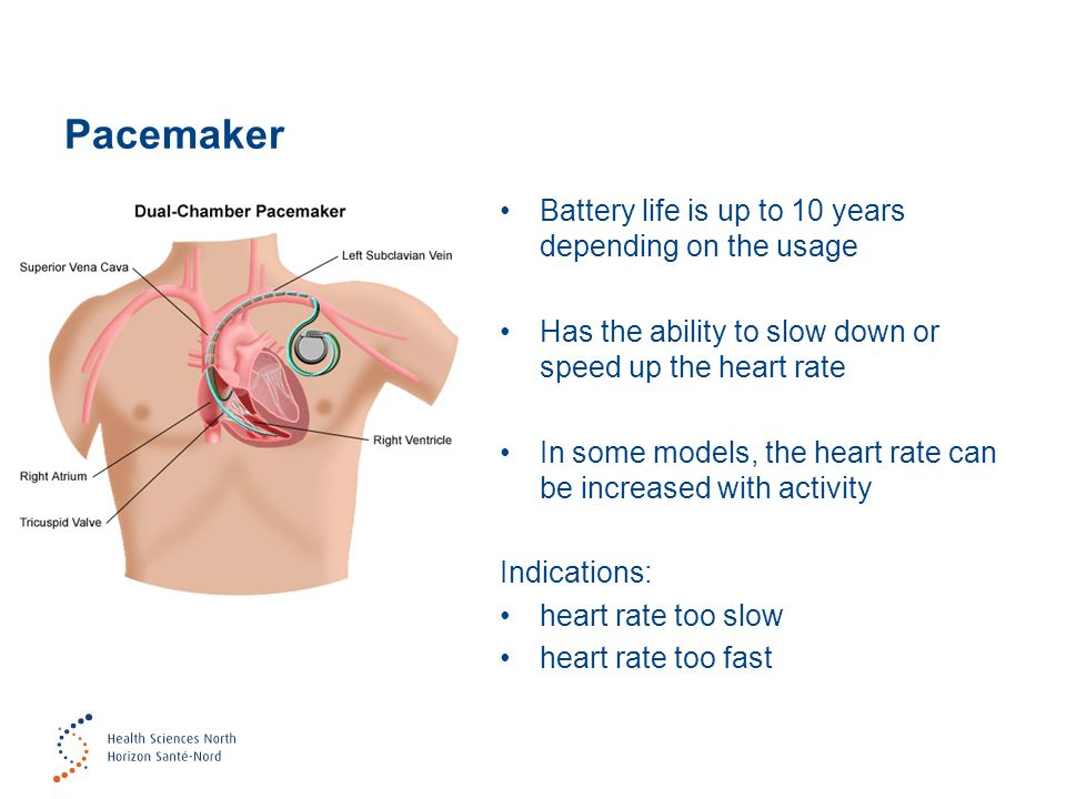 Pacemaker Battery life is up to 10 years depending on the usage