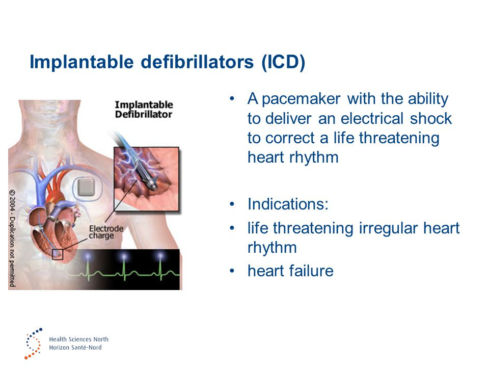 Implantable defibrillators (ICD)