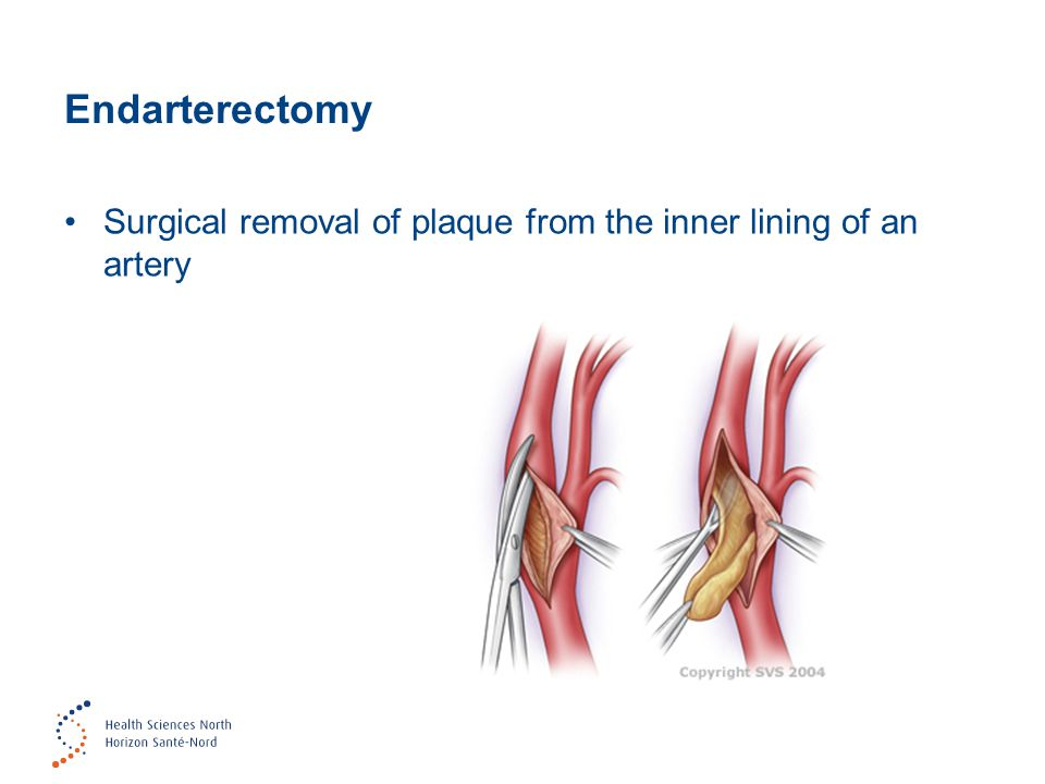 Endarterectomy Surgical removal of plaque from the inner lining of an artery