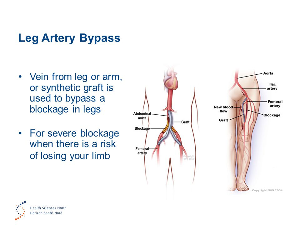 Leg Artery Bypass Vein from leg or arm, or synthetic graft is used to bypass a blockage in legs.
