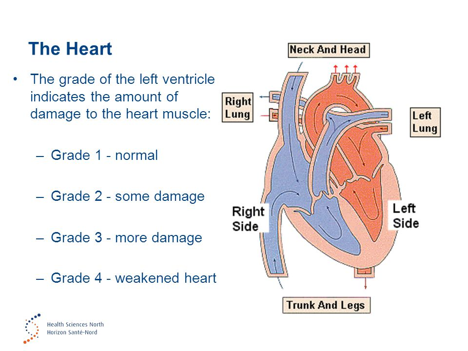 The Heart The grade of the left ventricle indicates the amount of damage to the heart muscle: Grade 1 - normal.