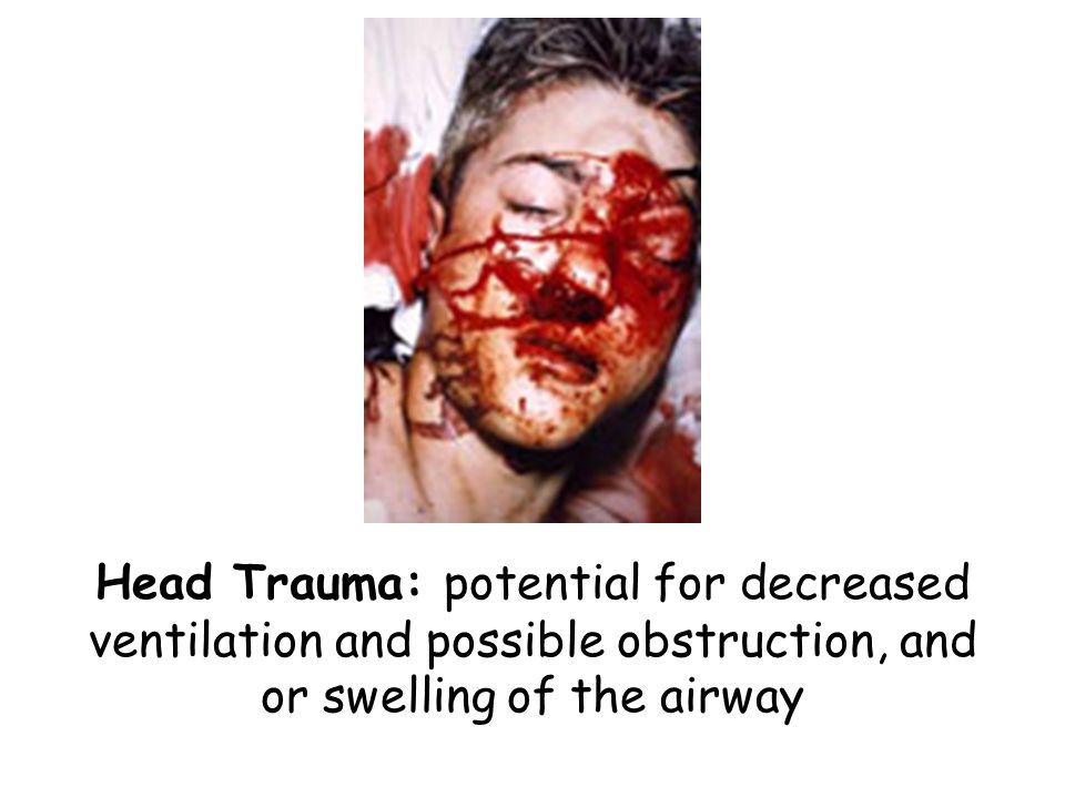 Head trauma think decreased ventilation and possible airway swelling