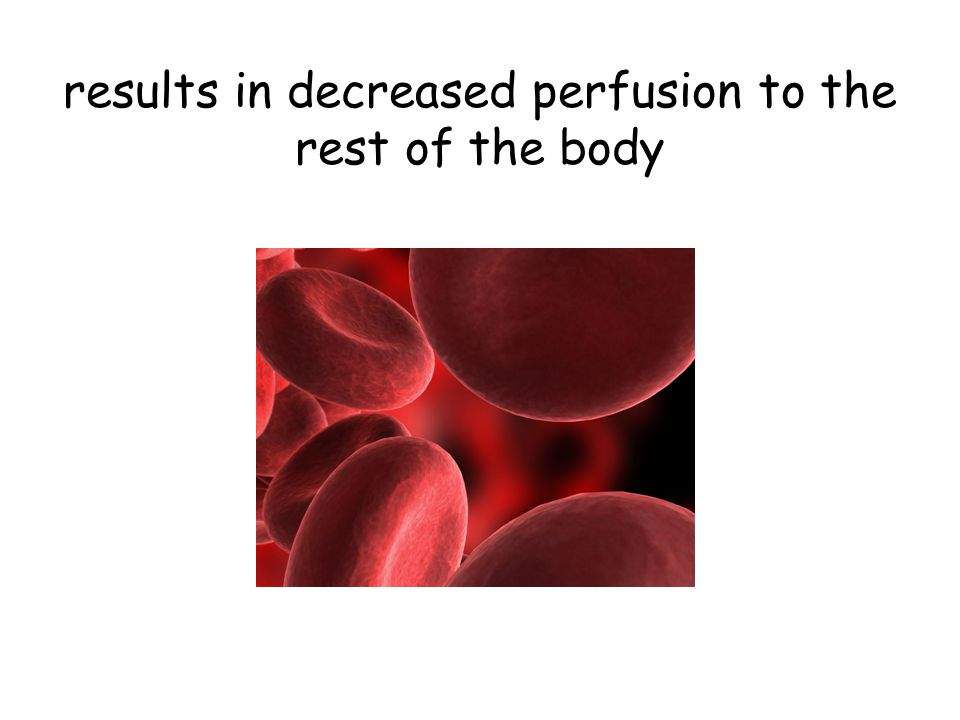 results in decreased perfusion to the rest of the body