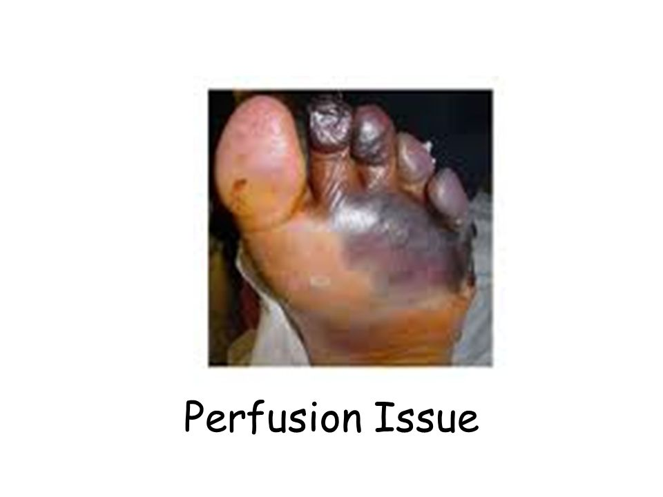 Perfusion issue Perfusion Issue