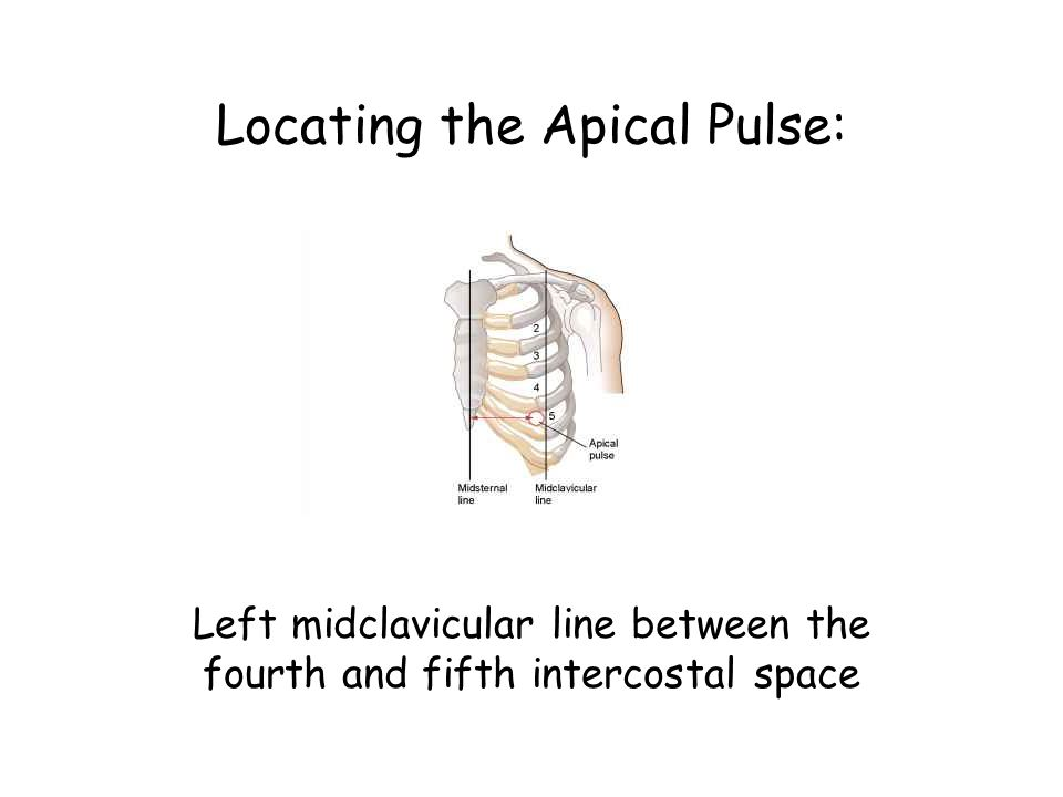 Locating the Apical Pulse: