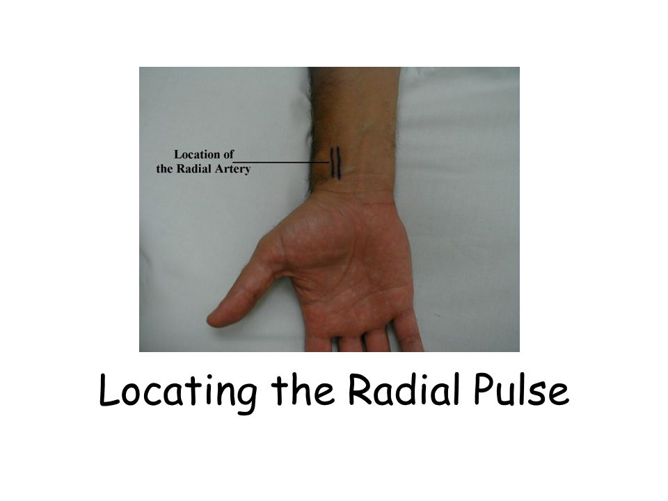 Locating the Radial Pulse