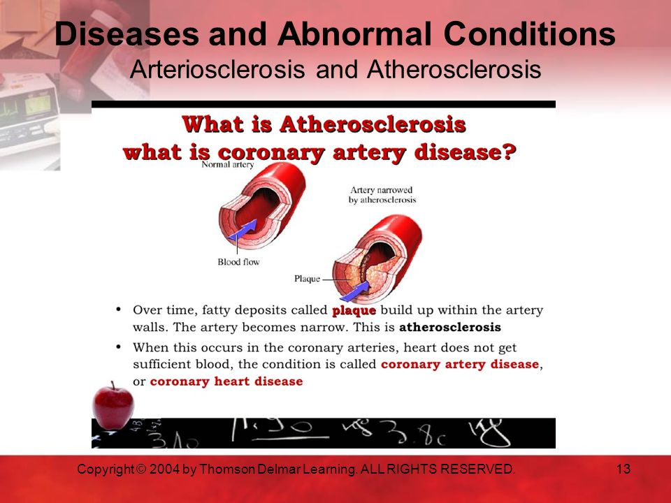 Diseases and Abnormal Conditions Arteriosclerosis and Atherosclerosis