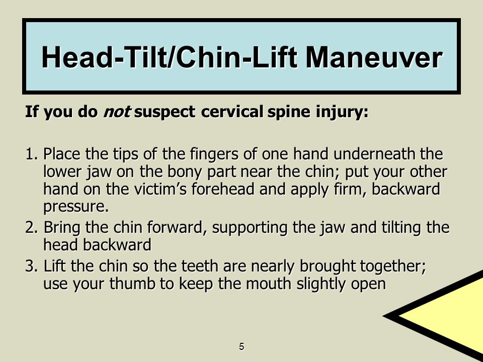 Head-Tilt/Chin-Lift Maneuver