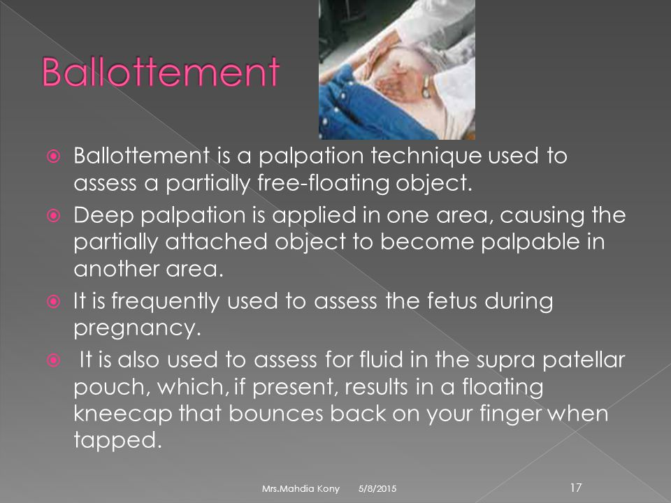 Ballottement Ballottement is a palpation technique used to assess a partially free-floating object.