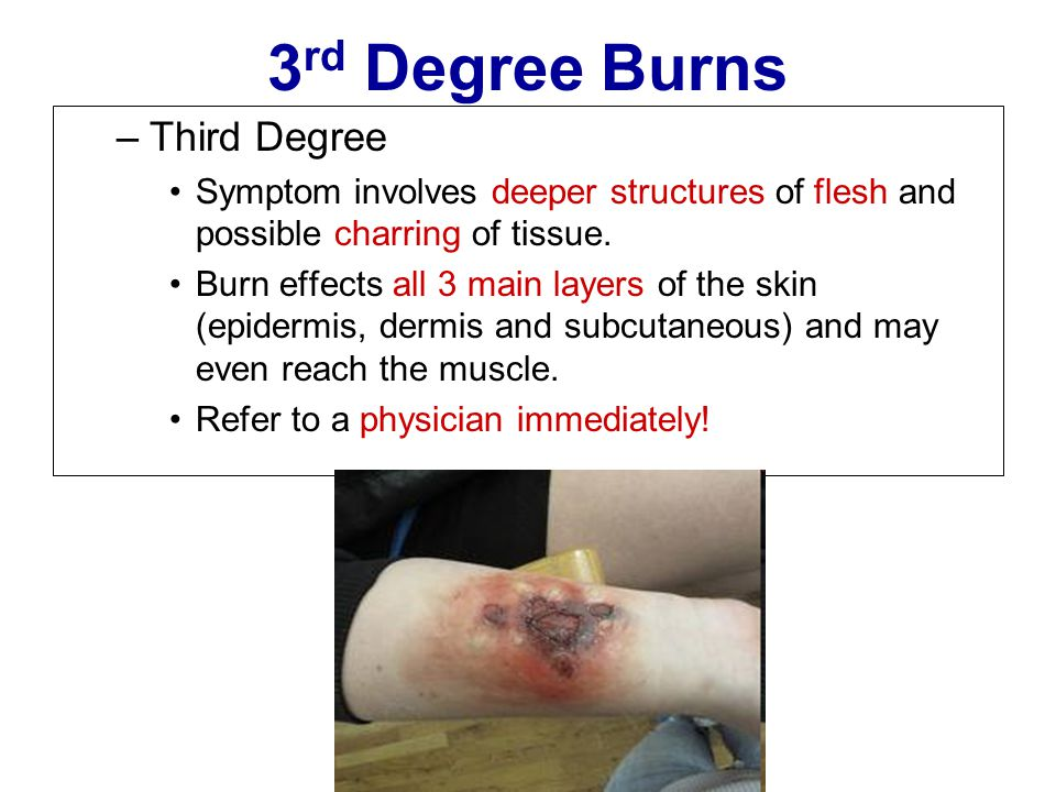 3rd Degree Burns Third Degree