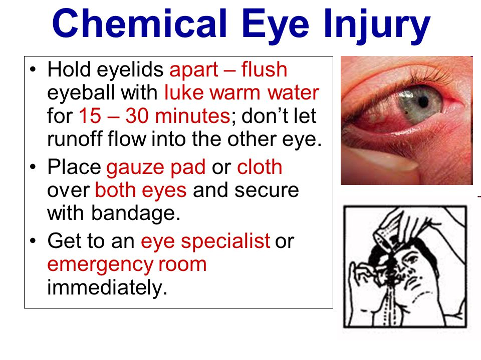 Chemical Eye Injury Hold eyelids apart – flush eyeball with luke warm water for 15 – 30 minutes; don't let runoff flow into the other eye.