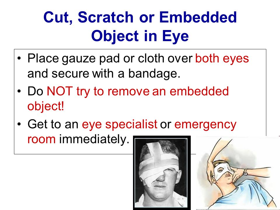 Cut, Scratch or Embedded Object in Eye