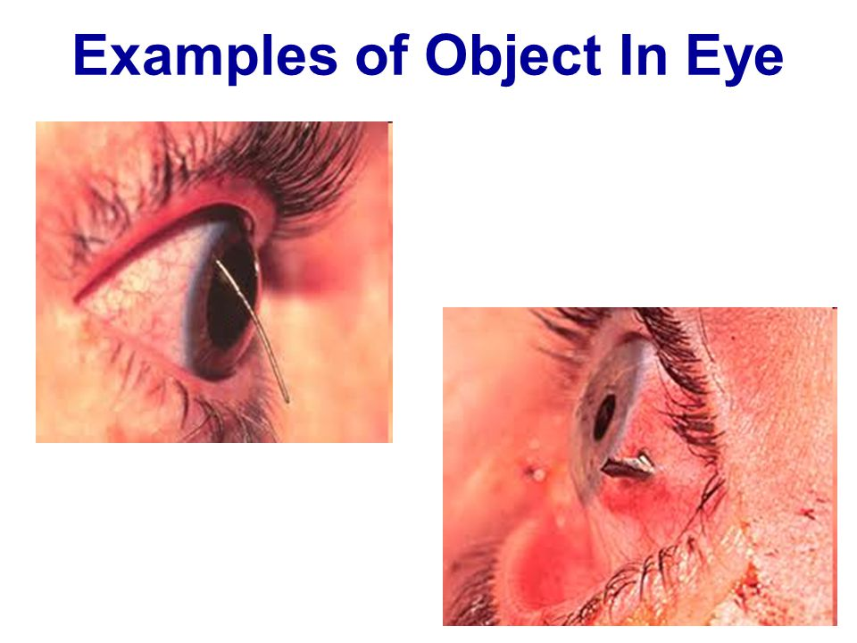 Examples of Object In Eye