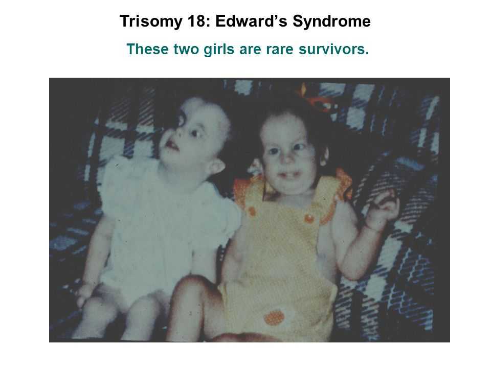 Trisomy 18: Edward's Syndrome These two girls are rare survivors.
