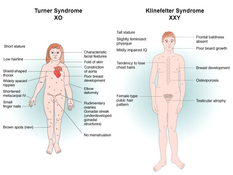 Turner Syndrome XO Klinefelter Syndrome XXY