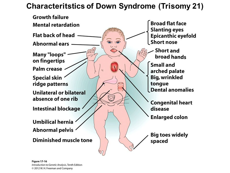 Characteritstics of Down Syndrome (Trisomy 21)