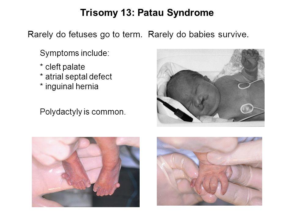 Trisomy 13: Patau Syndrome