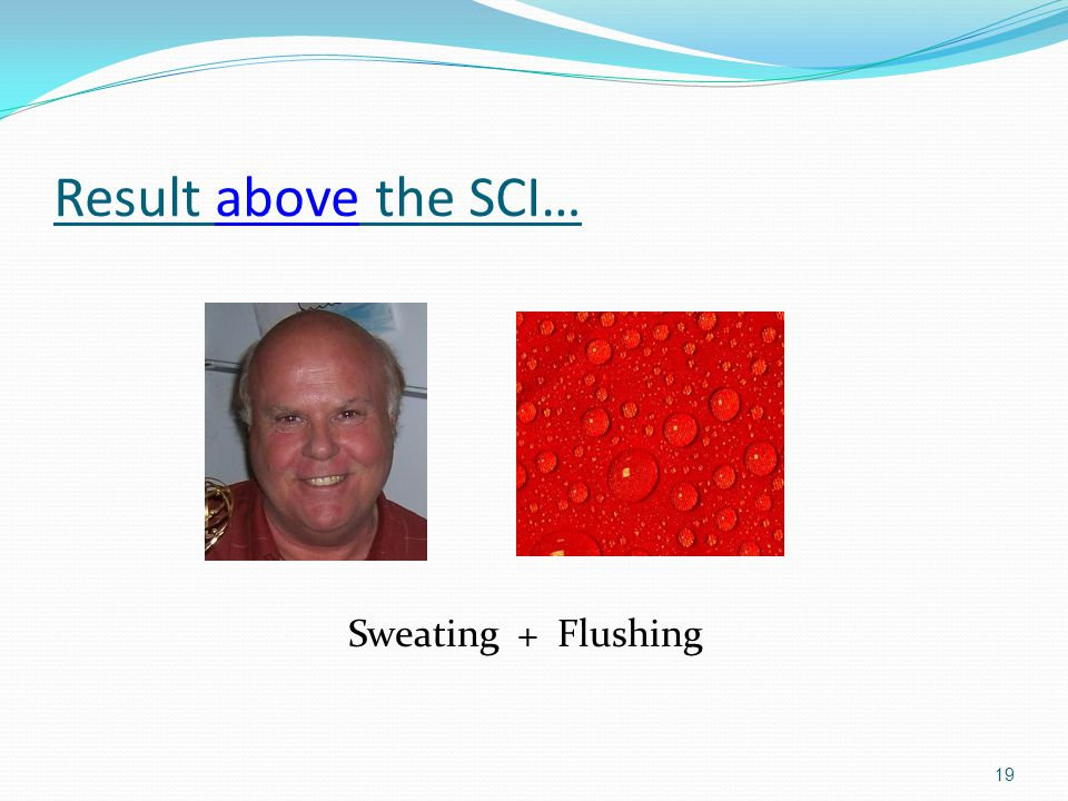 Result above the SCI… Sweating + Flushing
