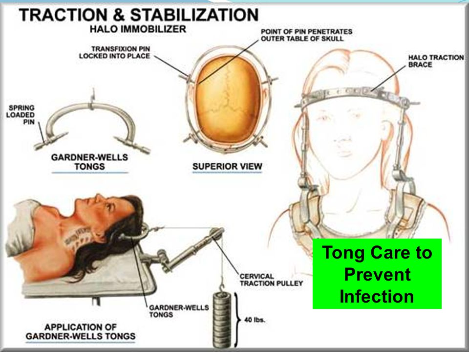 Tong Care to Prevent Infection