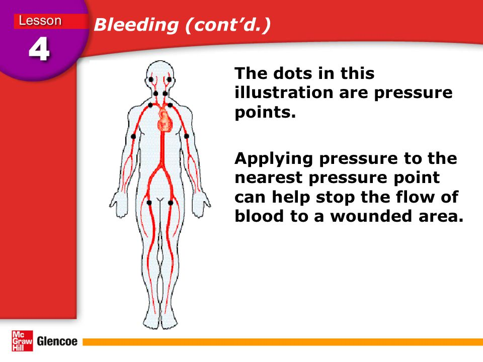 Bleeding (cont'd.) The dots in this illustration are pressure points.