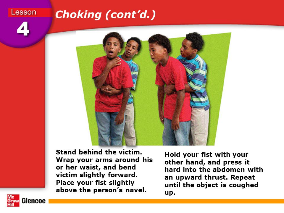 Choking (cont'd.) Click to display the steps for abdominal thrusts.