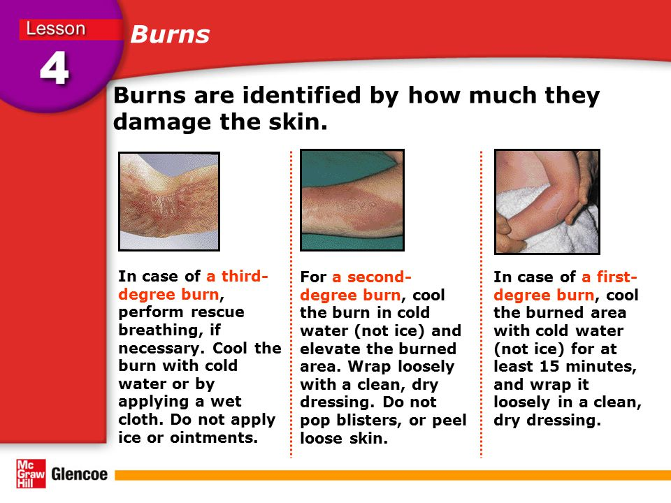 Burns Burns are identified by how much they damage the skin.