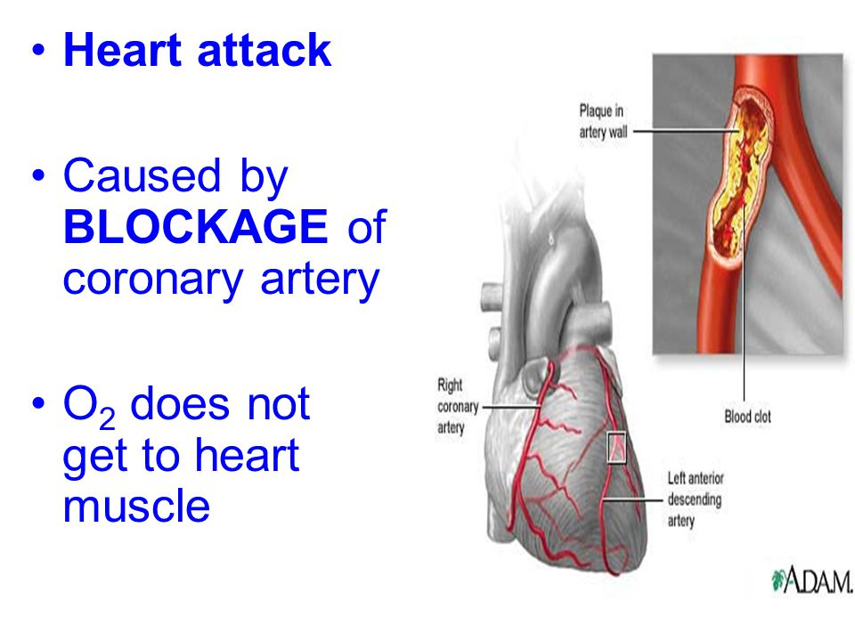 Heart attack Caused by BLOCKAGE of coronary artery O2 does not get to heart muscle
