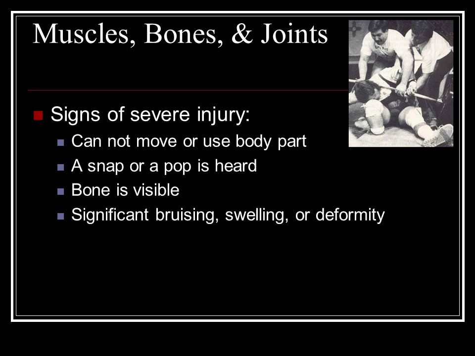 Muscles, Bones, & Joints Signs of severe injury: