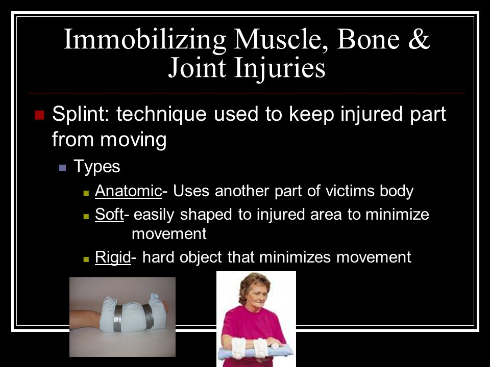 Immobilizing Muscle, Bone & Joint Injuries