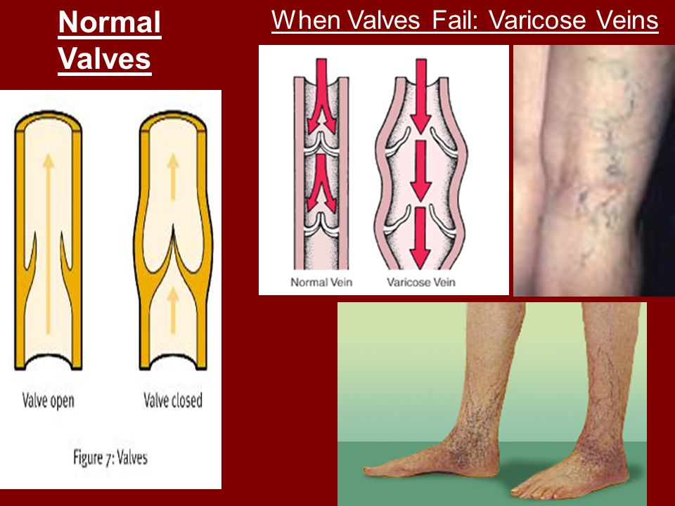 Normal Valves When Valves Fail: Varicose Veins