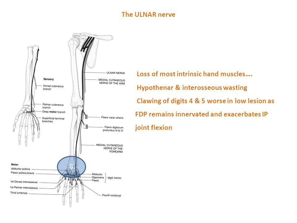 The ULNAR nerve Loss of most intrinsic hand muscles…. Hypothenar & interosseous wasting.