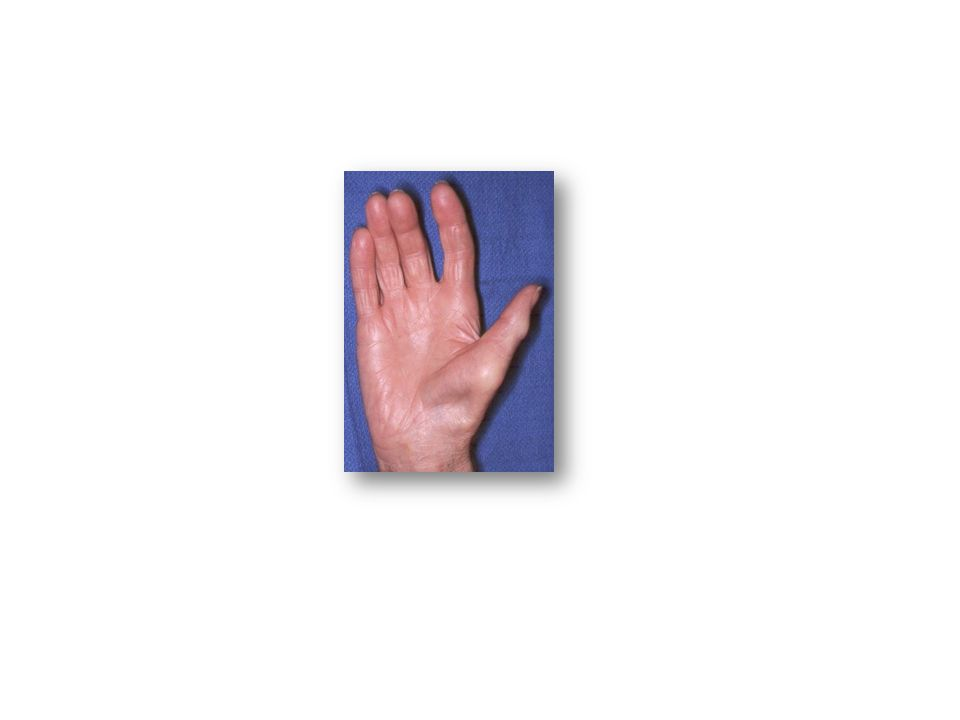 Median Nerve Damage: Thenar eminance wasting