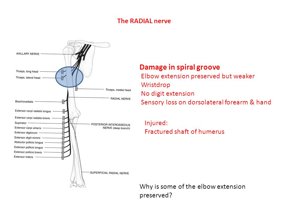 Damage in spiral groove