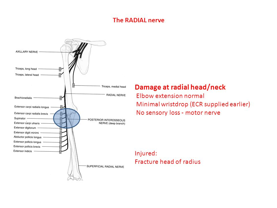 Damage at radial head/neck