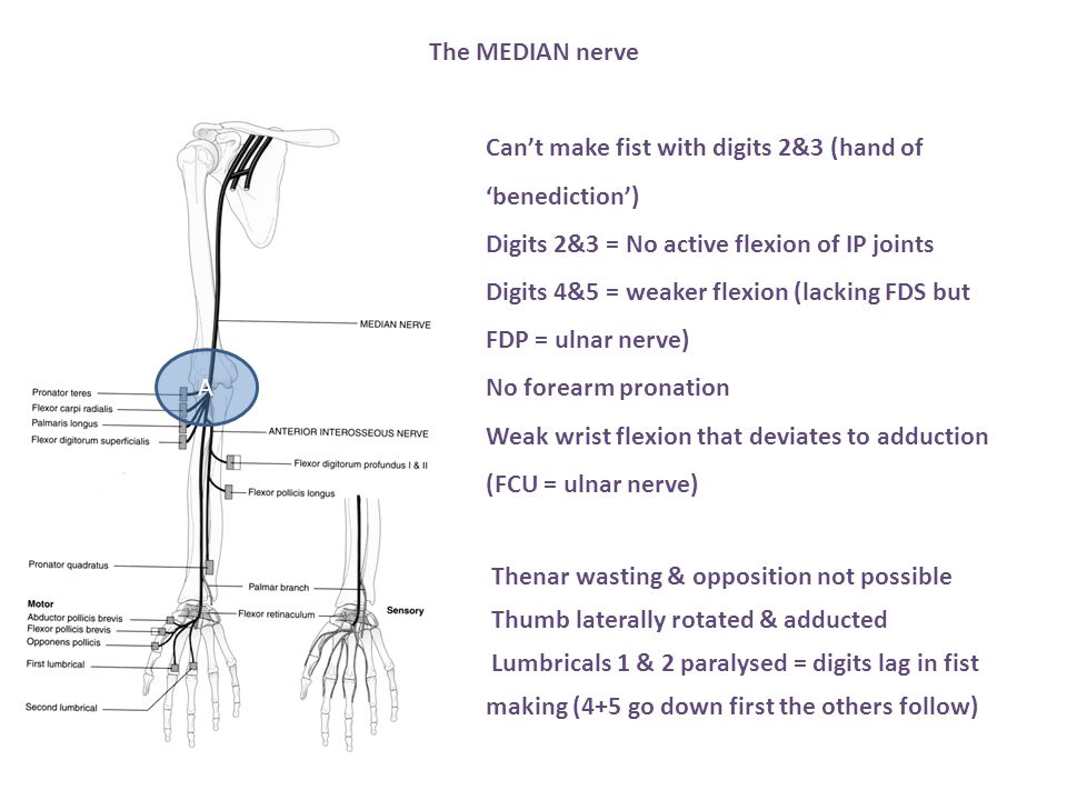 The MEDIAN nerve Can't make fist with digits 2&3 (hand of 'benediction') Digits 2&3 = No active flexion of IP joints.