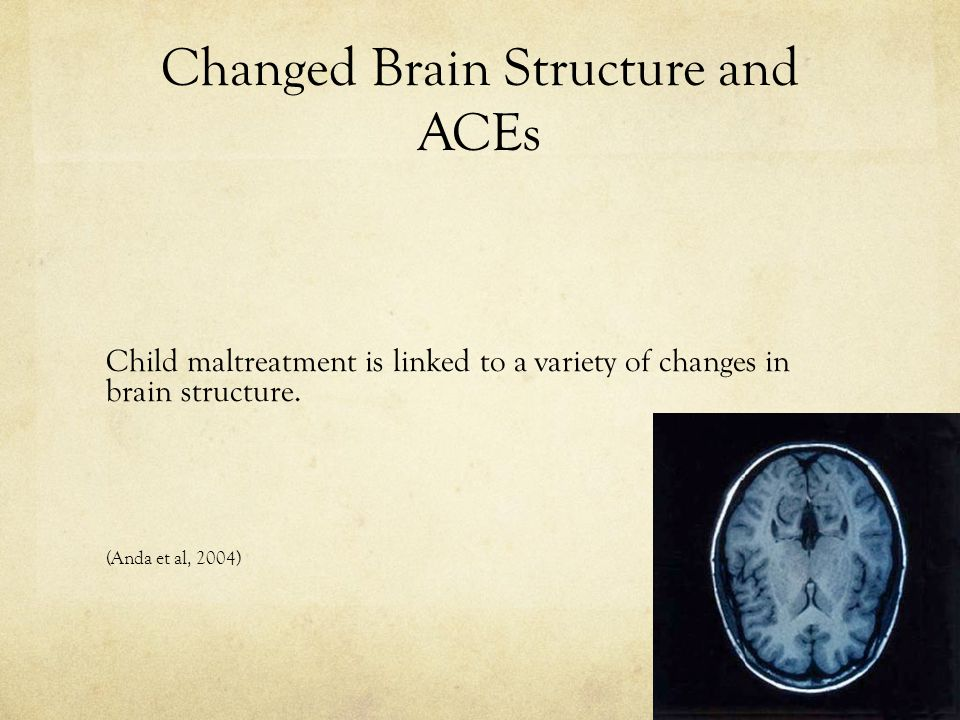 Changed Brain Structure and ACEs