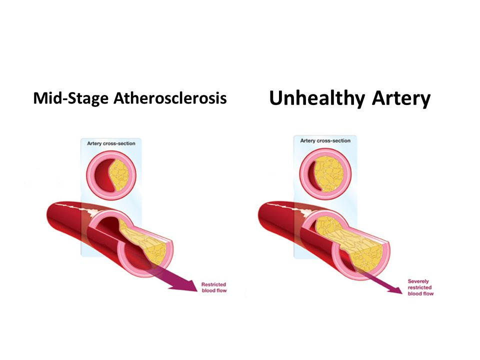 Mid-Stage Atherosclerosis