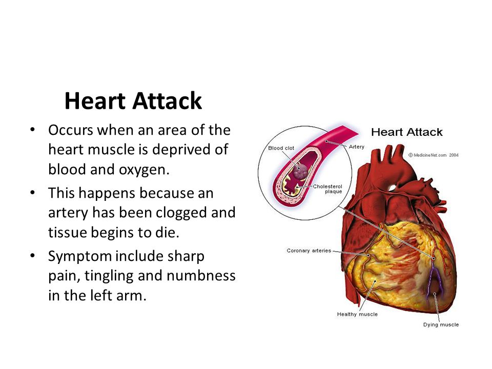 Heart Attack Occurs when an area of the heart muscle is deprived of blood and oxygen.