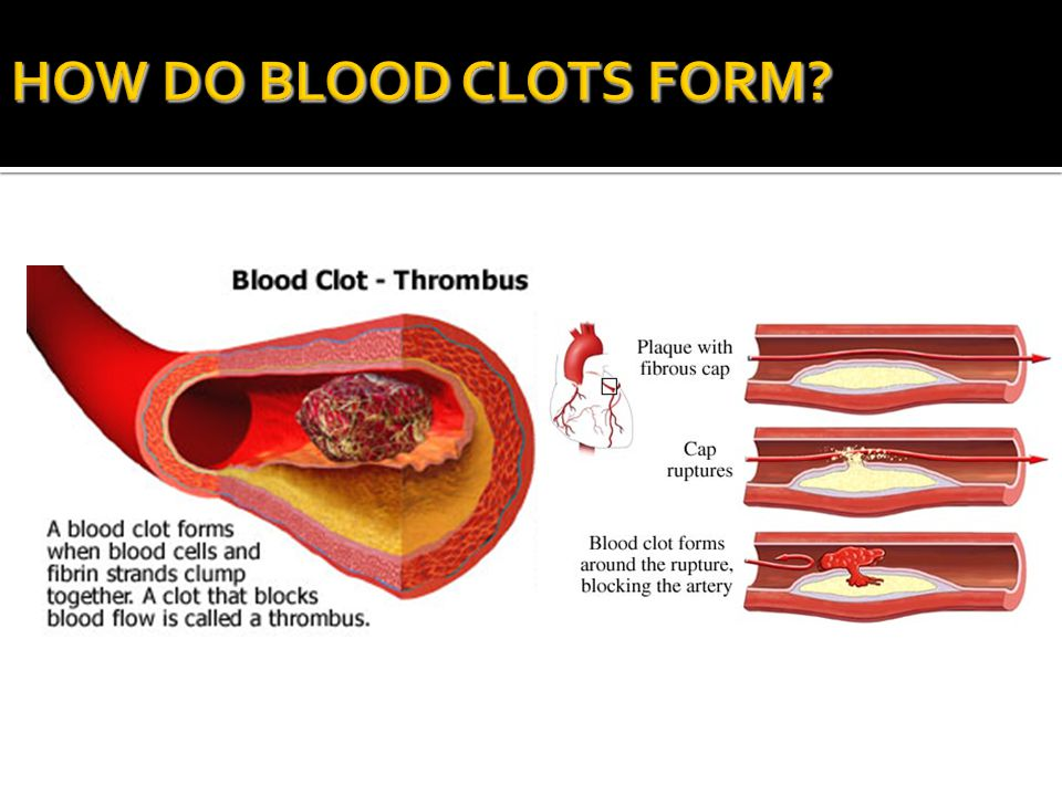 HOW DO BLOOD CLOTS FORM KEEP