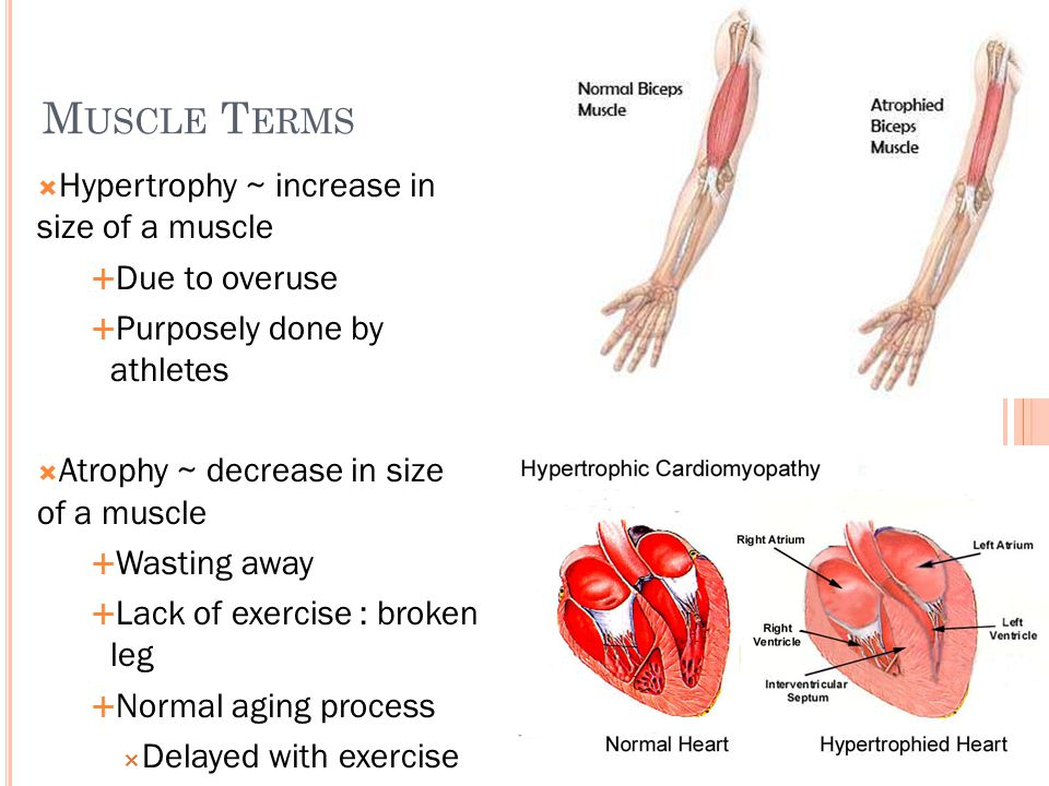 Muscle Terms Hypertrophy ~ increase in size of a muscle Due to overuse
