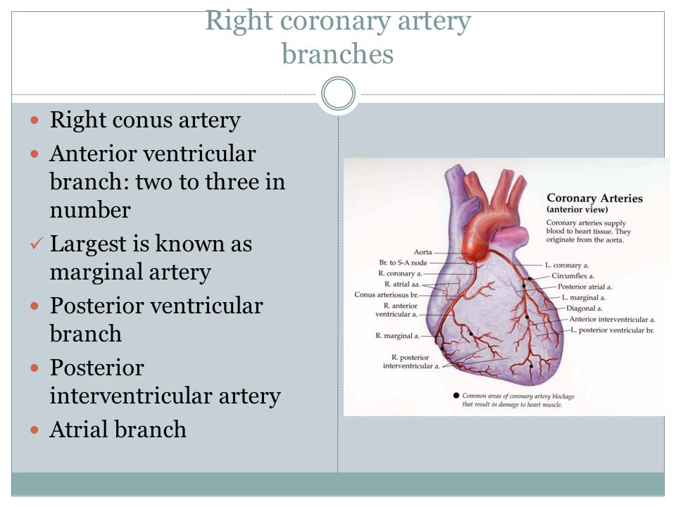 Right coronary artery branches