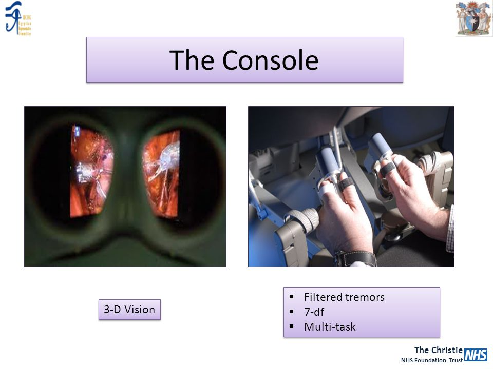 The Console Filtered tremors 7-df Multi-task 3-D Vision