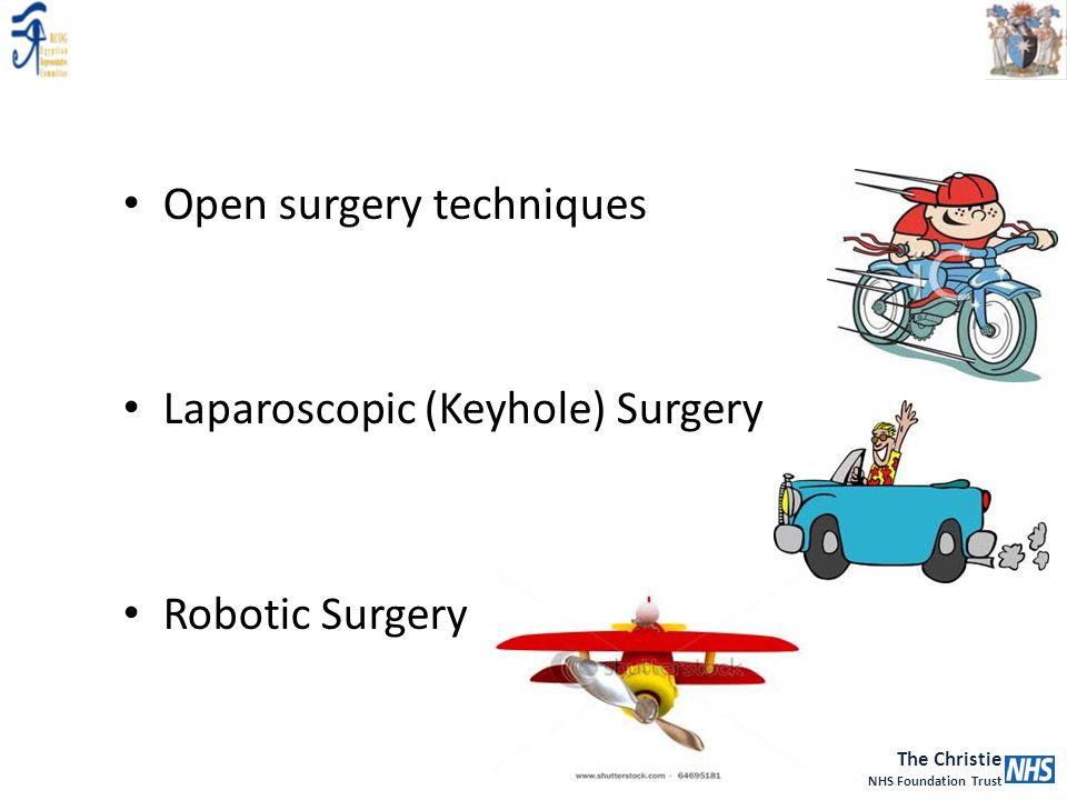 Open surgery techniques