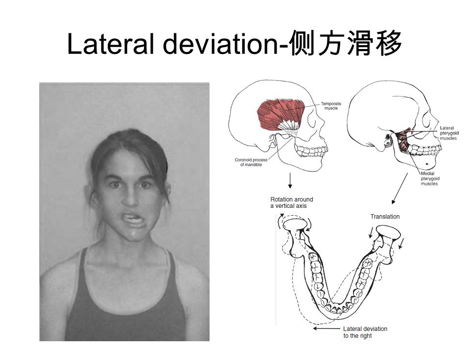 Lateral deviation-侧方滑移