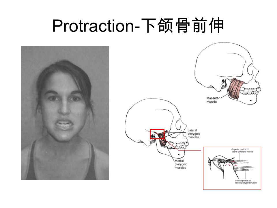 Protraction-下颌骨前伸