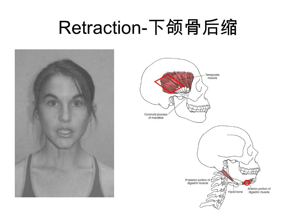 Retraction-下颌骨后缩